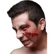 Zranění Jizva