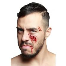 Zranění